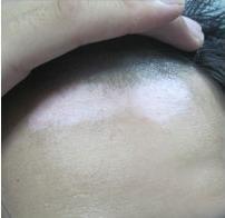 黄岩区皮肤敏感的诱因是白癜风吗