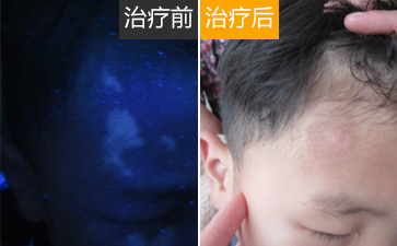 温州白癜风对孩子身体危害有哪些?