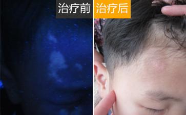 温州治疗2岁小孩白癜风的方法?