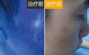 温州男性白癜风初期症状有哪些