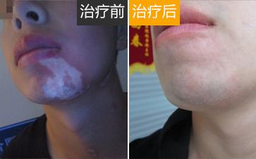 温州青少年脸上有白斑图片