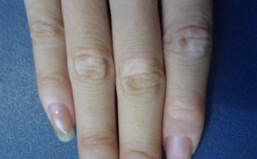 手指上有白癜风要怎么治疗