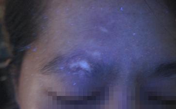 天台县长在脸部的白癜风有什么破坏
