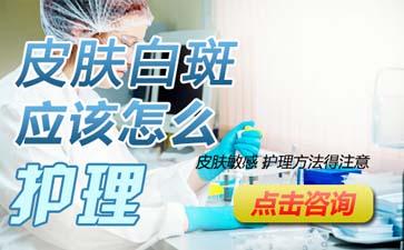 温州女性患者怎样护理脸部白癜风