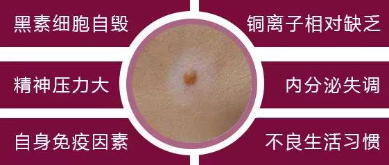 温州中研精准治疗,还您健康皮肤