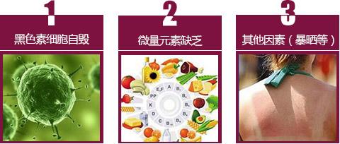 温州白癜风患者可以吃豆制品吗