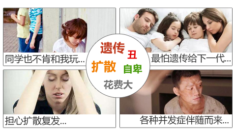 白癜风患者心情对病情有影响吗