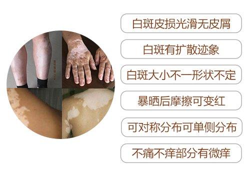 台州白癜风的专科医院