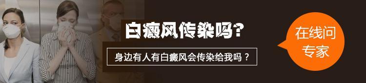 温州专家:白癜风疾病会不会传染给别人