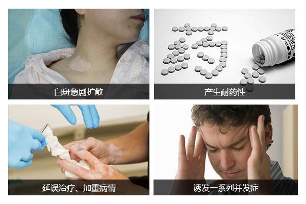 台州哪治疗白癜风医院最好