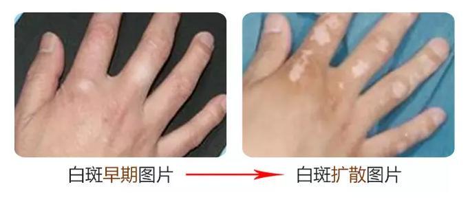 温州如何治疗手部白癜风呢