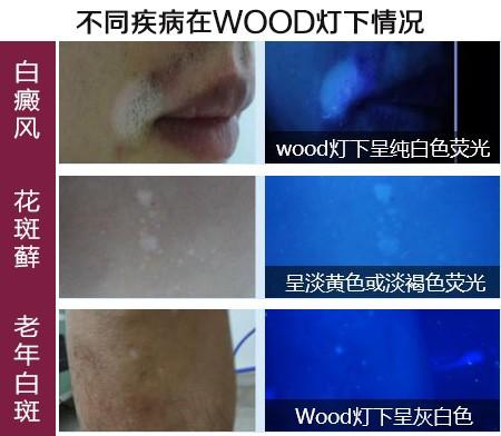 【公益】五项免费检查 确诊皮肤白斑