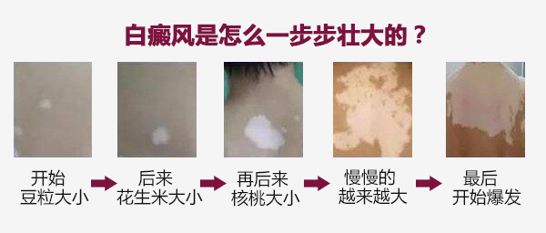 台州能治白癜风的医院