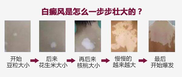 台州白癜风医院植皮要多少钱