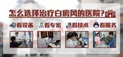 台州白癜风去哪治疗好?好口碑医院值得选择!