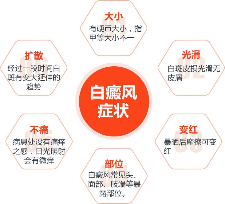 温州节段型白癜风有哪些症状表现