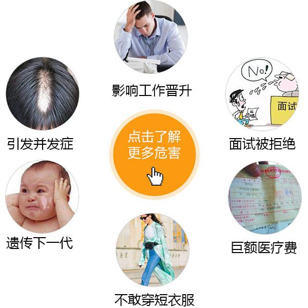 温州脸部的白癜风会给患者带来那些伤害