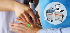 青田县生殖器白斑可以应用表皮移植术吗