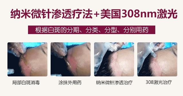 【公益普查周】温州市秋/冬白斑0元确诊,深秋不留白