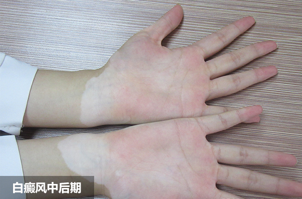 白癜风病情扩展